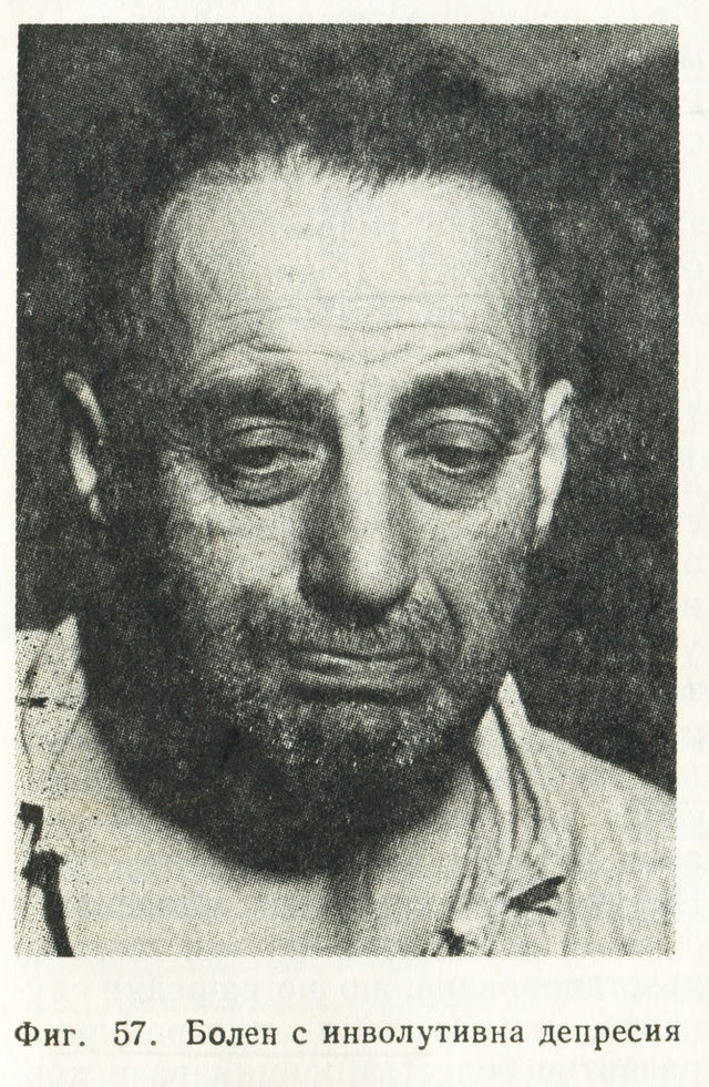"Архивна снимка, част от учебника ""Психиатрия"" на Иван Темков, Владимир Иванов и Тошо Ташев."