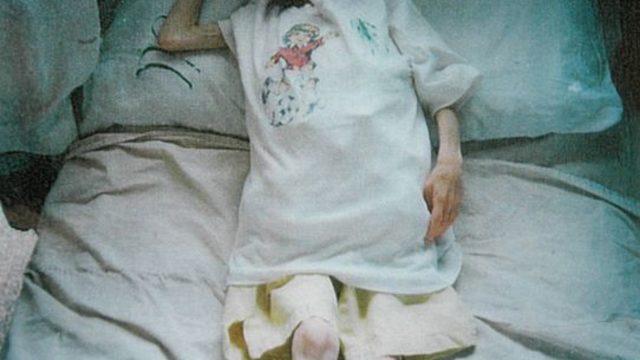 Лора в дома в Добромирци - 7 кг. на 7 години. След като е осиновена и излекувана, тя проговаря и прохожда